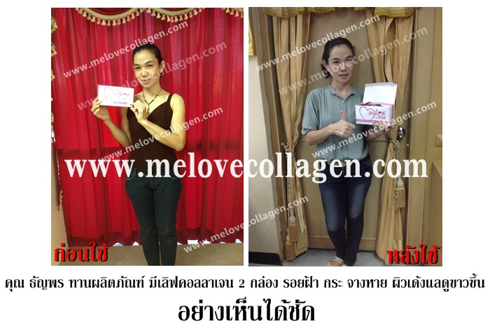 ����Կ�����ਹ melovecollagen �����ਹ��Ǣ����繼����7�ѹ www.melovecollagen.com