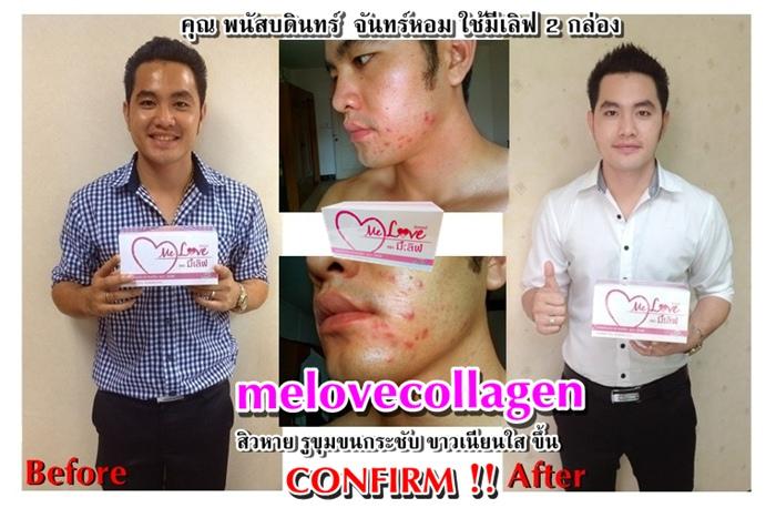 ����Կ �����ਹ melove collagen