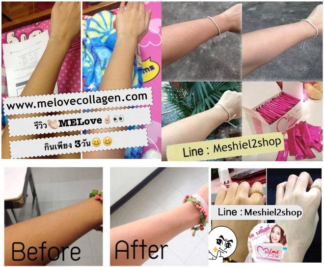 ����Կ �����ਹ Melove Collagen �ҤҶ١ ����� �ͧ�� �ٹ���˭� www.melovecollagen.com