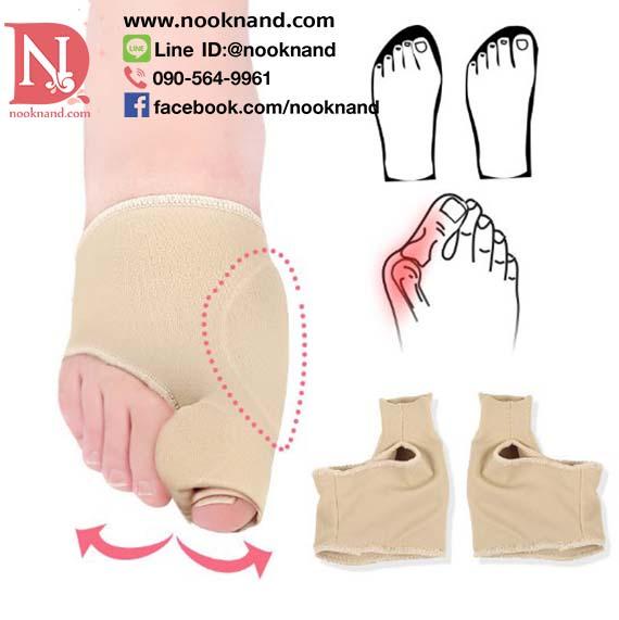 (รุ่นผ้าหุ้มก้อนกั้น)อุปกรณ์แก้ไขนิ้วเท้าเก นิ้วโป้ยเท้าเกย  กระดูกเท้าโปนด้านข้าง ลดการเสียดสีเวลาใส่รองเท้า